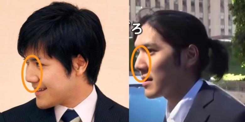 小室圭さん鼻の比較画像